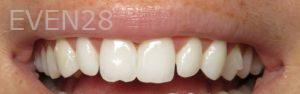 David-Eshom-Dental-Bonding-before-1