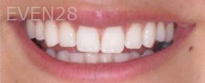 David-Eshom-Porcelain-Veneers-before-1