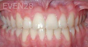 David-Moradi-Orthodontic-Braces-after-1b