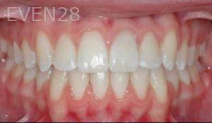 David-Moradi-Orthodontic-Braces-after-2b