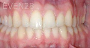David-Moradi-Orthodontic-Braces-after-3b