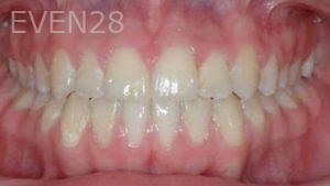 David-Moradi-Orthodontic-Braces-after-5b