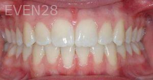 David-Moradi-Orthodontic-Braces-after-6b