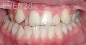 David-Moradi-Orthodontic-Braces-before-1b