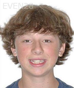 David-Moradi-Orthodontic-Braces-before-3