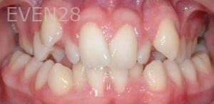 David-Moradi-Orthodontic-Braces-before-3b