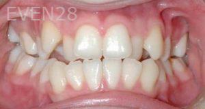 David-Moradi-Orthodontic-Braces-before-4b