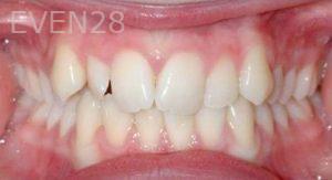 David-Moradi-Orthodontic-Braces-before-6b