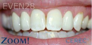 David-Schlang-Dental-Crowns-after-1