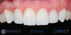 David-Schlang-Dental-Crowns-after-3