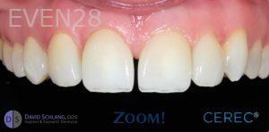 David-Schlang-Dental-Crowns-after-4