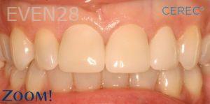David-Schlang-Dental-Crowns-after-5