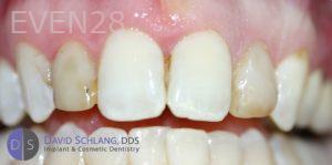 David-Schlang-Dental-Crowns-before-1