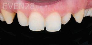 David-Schlang-Dental-Crowns-before-3