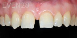 David-Schlang-Dental-Crowns-before-4