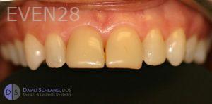 David-Schlang-Dental-Crowns-before-5