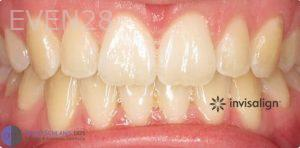 David-Schlang-Invisalign-Clear-Aligners-after-1