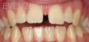 David-Schlang-Invisalign-Clear-Aligners-before-1