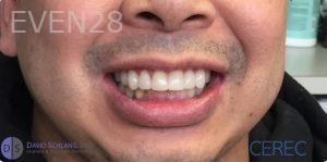 David-Schlang-Smile-Makeover-after-2
