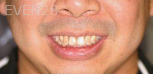 David-Schlang-Smile-Makeover-before-2