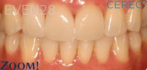 David-Schlang-Teeth-Whitening-after-1