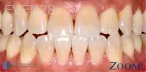 David-Schlang-Teeth-Whitening-after-2