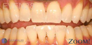 David-Schlang-Teeth-Whitening-after-3