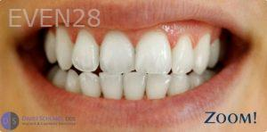 David-Schlang-Teeth-Whitening-after-4