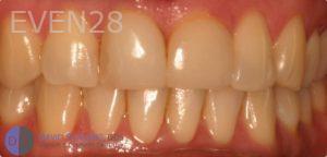 David-Schlang-Teeth-Whitening-before-1