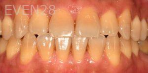 David-Schlang-Teeth-Whitening-before-2