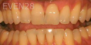 David-Schlang-Teeth-Whitening-before-3
