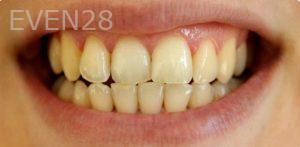 David-Schlang-Teeth-Whitening-before-4