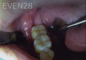 David-Tran-Amalgam-Mercury-Replacement-after-1