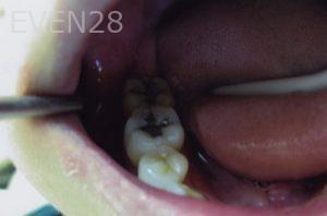 David-Tran-Amalgam-Mercury-Replacement-before-1