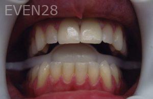David-Tran-Dental-Bonding-after-1