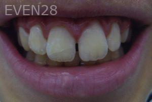 David-Tran-Dental-Bonding-after-2