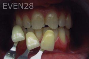 David-Tran-Dental-Bonding-before-1