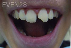 David-Tran-Dental-Bonding-before-2