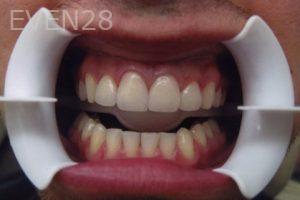 David-Tran-Dental-Crowns-after-1