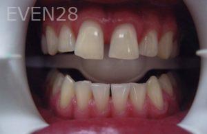 David-Tran-Dental-Crowns-before-1