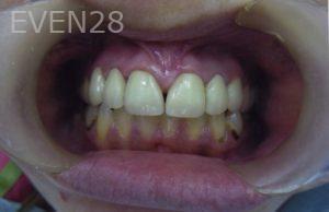 David-Tran-Full-Mouth-Rehabilitation-after-1David-Tran-Full-Mouth-Rehabilitation-after-1