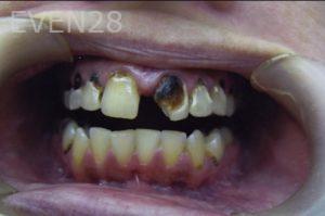 David-Tran-Full-Mouth-Rehabilitation-before-1