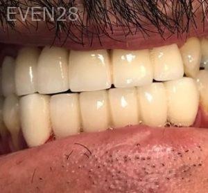 Don-Solooki-Dental-Bridges-after-1
