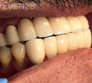 Don-Solooki-Dental-Bridges-after-1b