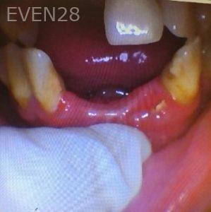 Don-Solooki-Dental-Bridges-before-1b