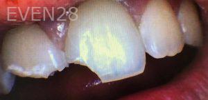 Donald-Tormey-Dental-Bonding-before-1