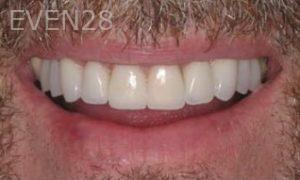 Donald-Tormey-Dental-Crowns-after-1