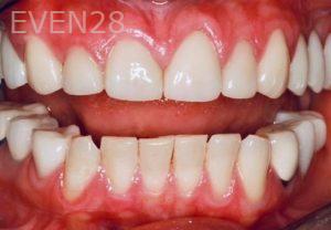 Donald-Tormey-Dental-Crowns-after-2