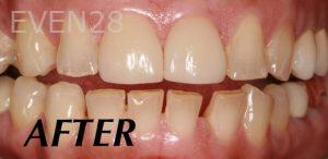 Donald-Tormey-Dental-Crowns-after-4