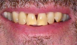 Donald-Tormey-Dental-Crowns-before-1
